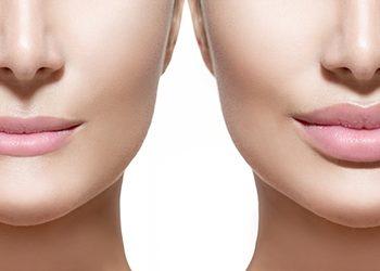 Instytut Kosmetologii Twarzy i ciała MONROE - powiększanie i modelowaniu ust kw.hialuronowy