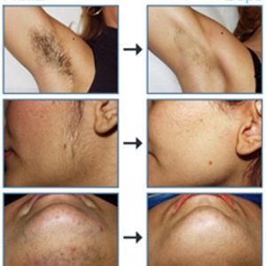 DAY SPA INNOWACJE - Laser Diodowy MedioStar - usuwanie owłosienia - RĘCE - Przedramiona + łokcie Kobieta - 300zł