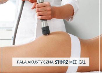 Velvet Skin Clinic - fala akustyczna storz medical -30% i -50%