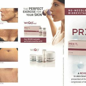 Prxt33 results