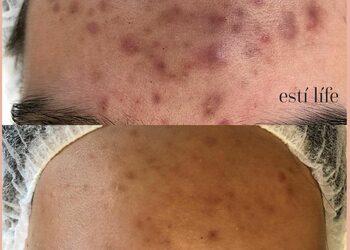 Esti Life - terapia przeciwtrądzikowa