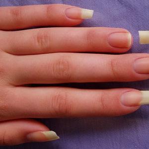 Broken nail by tartofraises