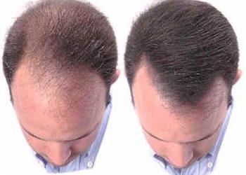 KLINIKA URODY LEWANDOWSKI - mezoterapia - leczenie łysienia