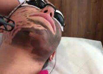 Klinika Trychologii i Kosmetologii Estetycznej Zakątek Piękna - black doll- laserowy peeling węglowy