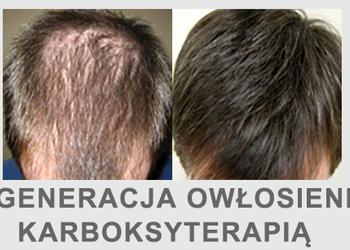 Instytut Urody Symfonia Piękna - łysienie androgenowe / przetłuszczanie sie włosów / łuszczyca terapia dwutlenkiem węgla karboksyterapia