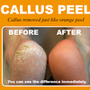 Callus peel treatment pedicure dublin