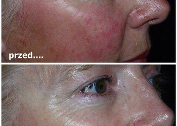 Pracownia Kosmetyczna Pracownia Fryzjerska - aza peel rekomendowany zabieg dla cery wrażliwej