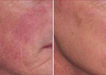 Pracownia Kosmetyczna Pracownia Fryzjerska - lacto peel - problemy ze skórą wrażliwą