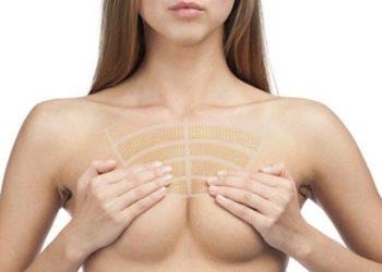 INFINITY MED  - hifu - ujędrnienie skóry - dekolt