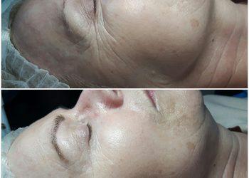 GABINET KOSMETOLOGICZNY KAMILJA -  infuzja tlenowa na twarz, usta i oczy