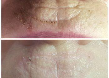 DAY SPA INNOWACJE - zmarszczki palacza wokół ust - usunięcie plazmą