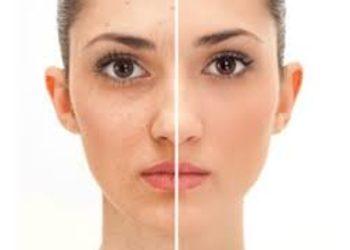 Zakątek Piękna - acne skóra tłusta, trądzik