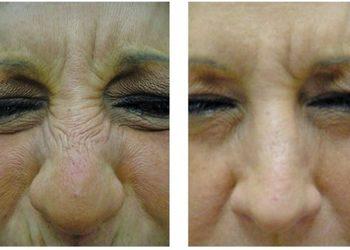 KLINIKA URODY LEWANDOWSKI - botox- zmarszczki na nosie