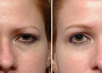 KLINIKA URODY LEWANDOWSKI - botox - podnoszenie łuku brwiowego (opadająca powieka)