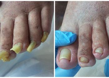 Gabinet Podologiczno Kosmetyczny  - opracowanie paznokci zrogowaciałych, przerośniętych, grzybiczych