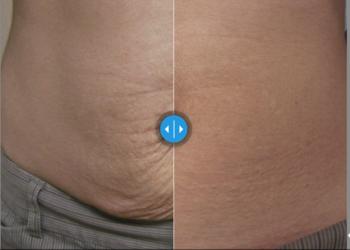 CLINIQMED - skin tyte duży obszar twarz+szyja+dekolt/ pośladki/ brzuch/boczki
