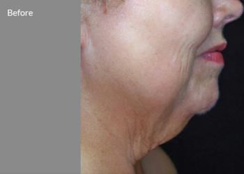 CLINIQMED - skin tyte mały obszar twarz+podbódek/ grzbiet rąk/ramiona/kolana