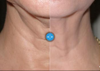 CLINIQMED - skin tyte standard twarz+ podbródek/ grzbiety rąk/ ramiona/ brzuch