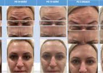 Zakątek Piękna - botox