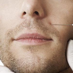 Jean Baptiste Klinika Urody & SPA - Mezoterapia igłowa FILORGA - twarz