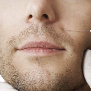 Jean Baptiste Klinika Urody & SPA - Mezoterapia igłowa FILORGA- twarz/szyja/dekolt