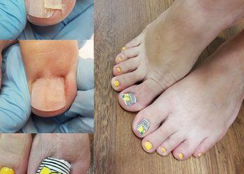 Salon Kosmetyczny Nails Station - rekonstrukcja paznokci stóp